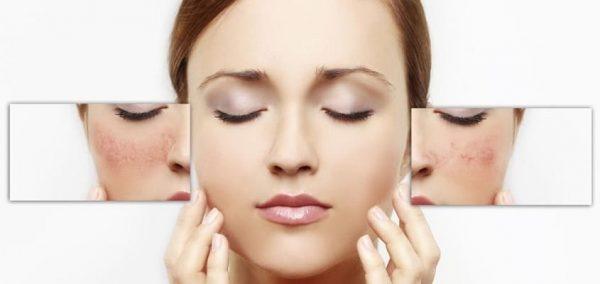 Лечение сосудистой сетки на лице