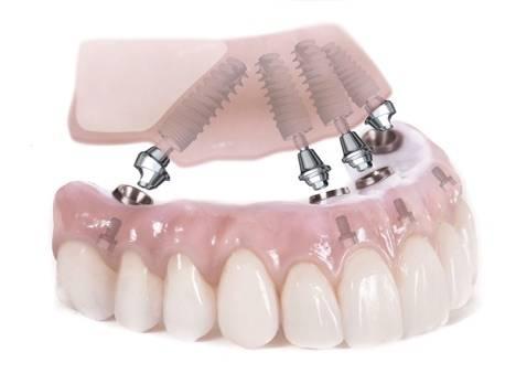 Зубы за 1 день по методу Все-на-4