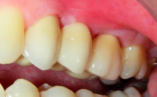 Преимущества протезирования зубов